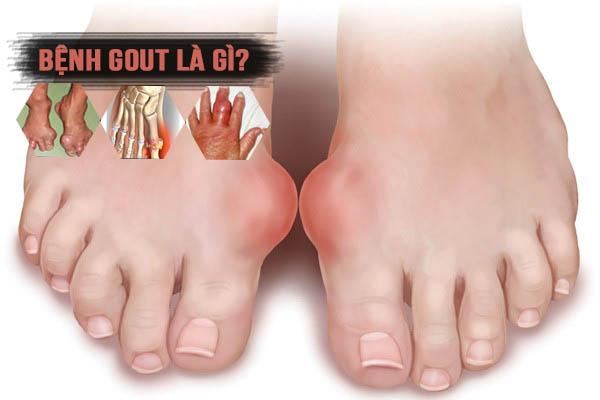 Tỏi đen trị bệnh gout