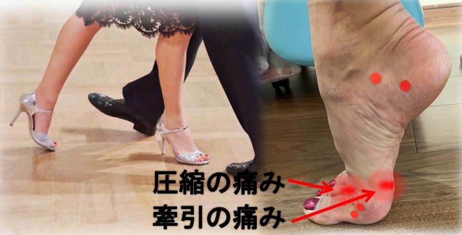 社交ダンスで外反母趾が痛い 墨田区45歳女性の足の整体