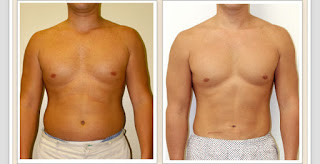 Liposucción abdominal