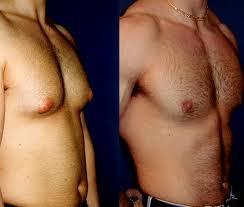 Ginecomastia, antes y después