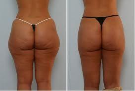 Liposucción en caderas