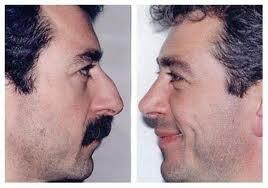 Rinoplastia ,antes y después
