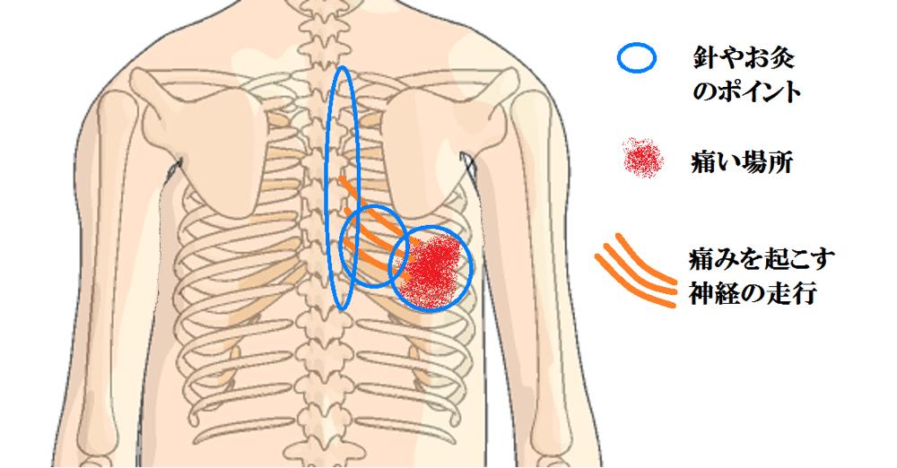 帯状疱疹後神経痛の針とお灸のポイント