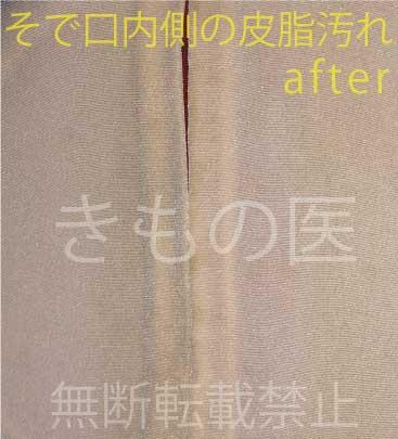 正絹着物の安い部分洗い・そで洗いのわかりやすいビフォー・アフター画像・えり洗い後のアフター画像