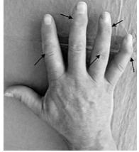 Bild: Klinisches Bild einer Fingerpolyarthrose