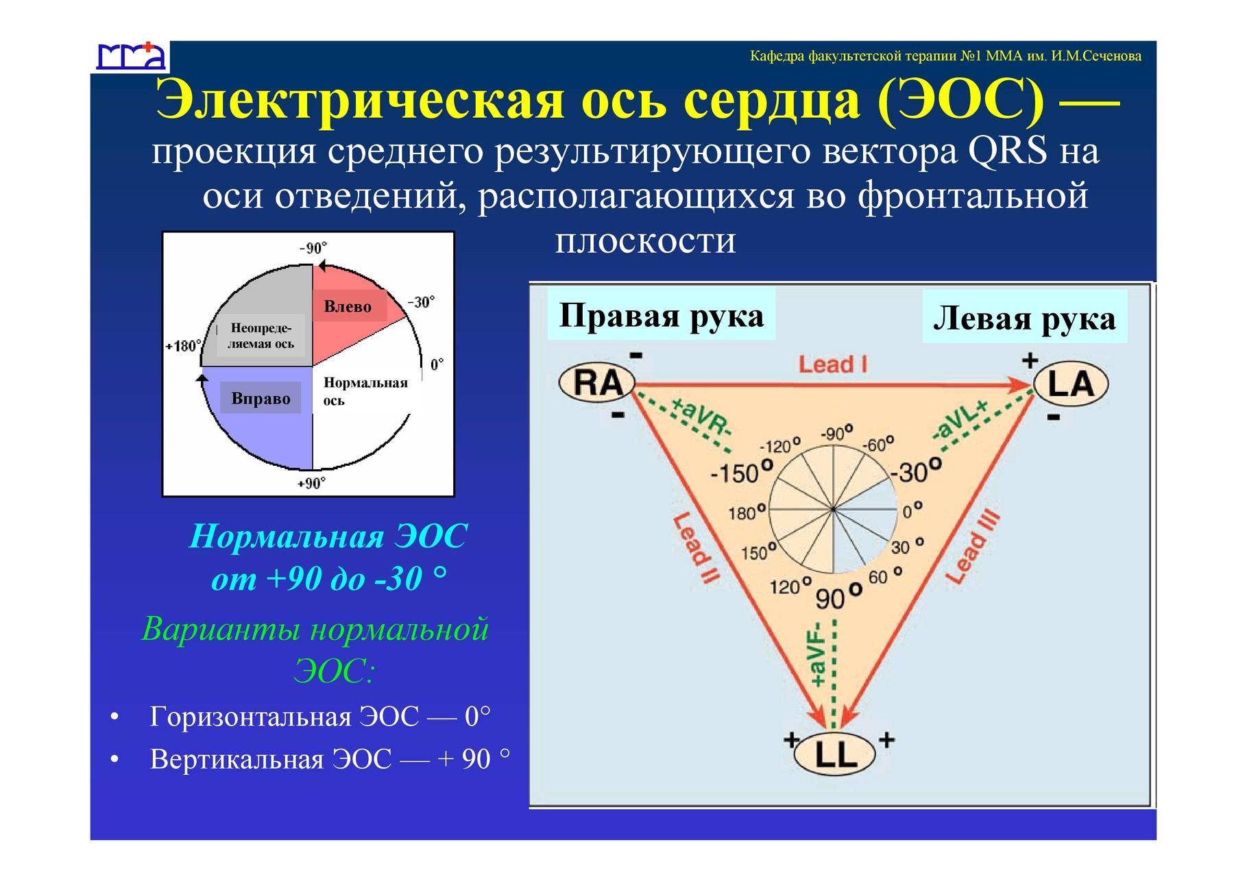Картинка для определения эос