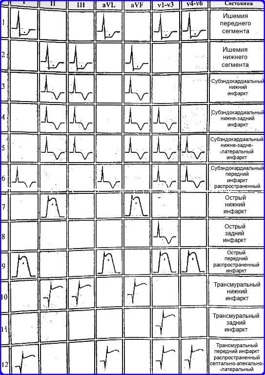 """ЭКГ признаки инфаркта миокарда - Шпаргалки для """"скорой помощи"""""""
