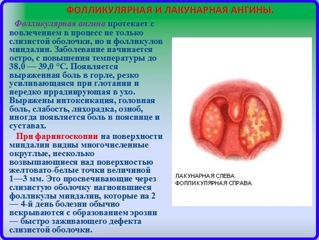 воспаление миндалин запах изо рта