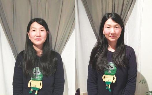 小顔リフトアップ効果の画像