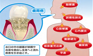 歯周病菌 全身の病気をひきおこす