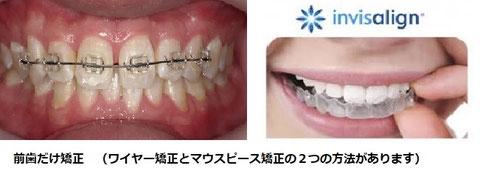 前歯矯正 インビザライン マウスピース矯正