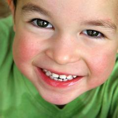 Atención Dental a niños