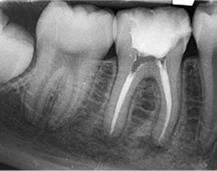 Radiografía de Endodoncia
