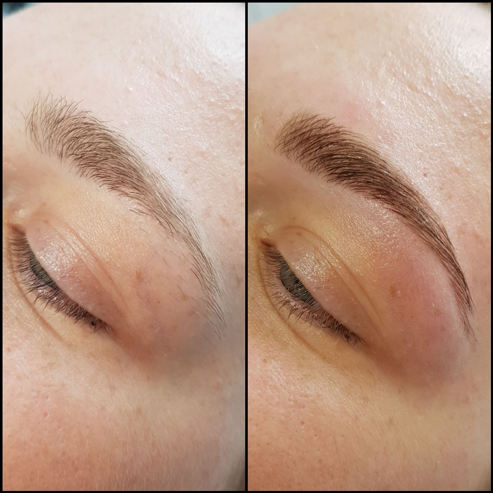 Browlifting