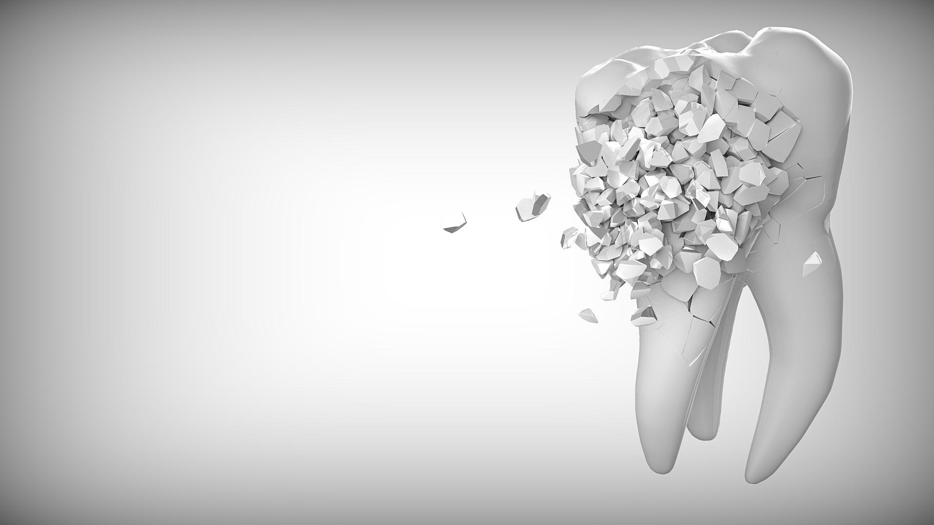 Zahnzusatzversicherung, wenn es schon zu spät ist