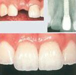 Schemata von Frontzahnimplantat nach Zahnverlust