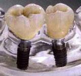 Schemata von Seitenzahnimplantaten nach Zahnverlust
