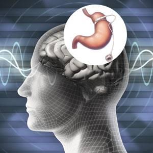 Adelgazar con hipnosis banda gastrica virtual