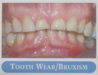 歯の磨り減り/歯ぎしり