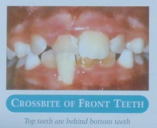 前歯の反対咬合