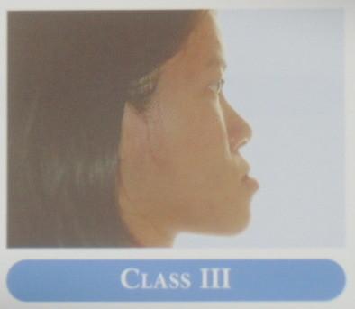 下顎の前方位