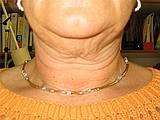 Hals und Kinn vor der Fettweg-Spritze: Bargello AESTHETIK Giessen
