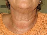 Straffe Haut am Kinn- und Halsbereich: Bargello AESTHETIK Giessen