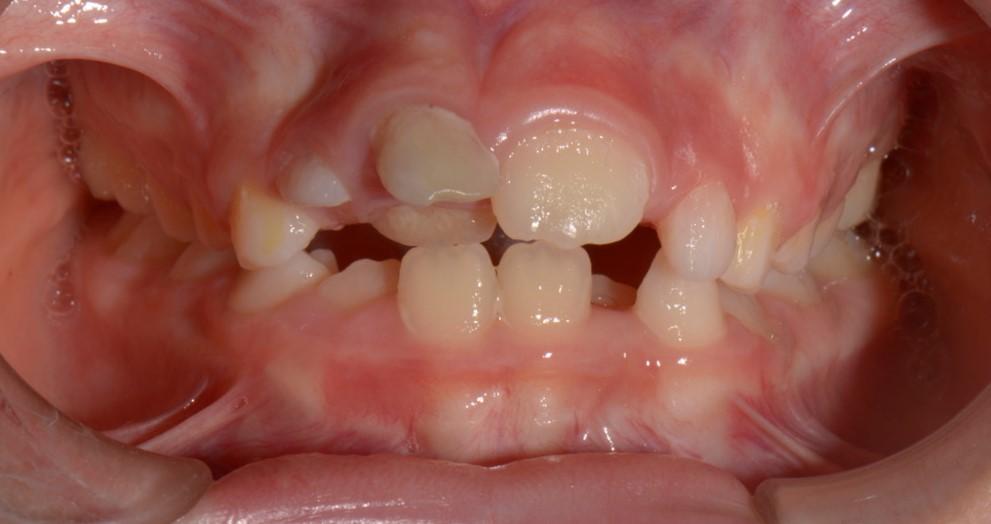 foto intraorali dei denti