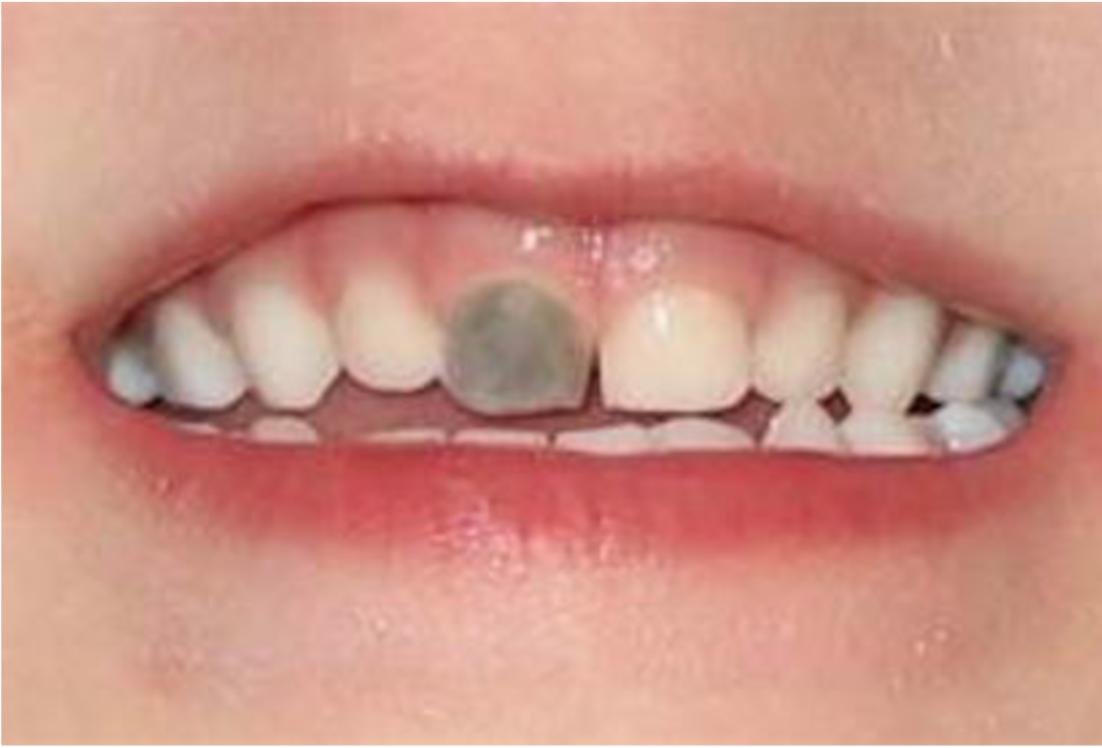 cambiamento di colore di un dente d latte dopo una caduta