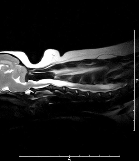 脊髄空洞症