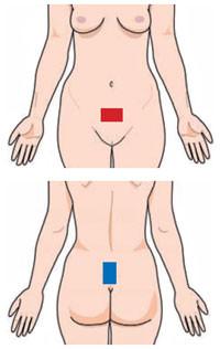 TENS Inkontinenz Elektrodenanlage
