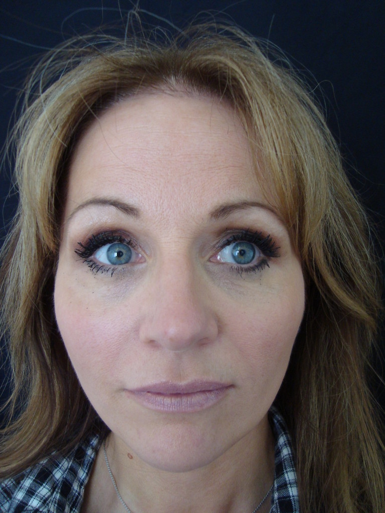 Treatment Complete - note the jowls improved and face refreshed. With a Completely Natural Appearance.