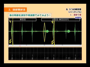 異常音・詰まり音の音響分析を示した図