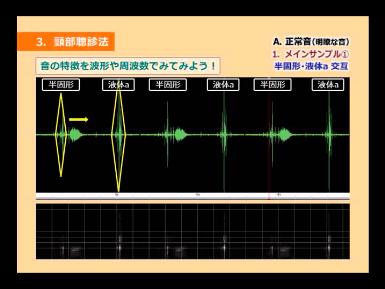 正常音(明瞭な音)の音響分析を示した図