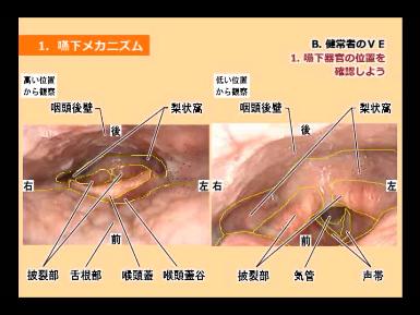 嚥下内視鏡検査(VE)の写真を使った嚥下器官の解剖図