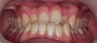 下顎前突症例