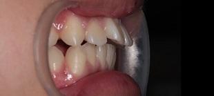 上顎前突症例