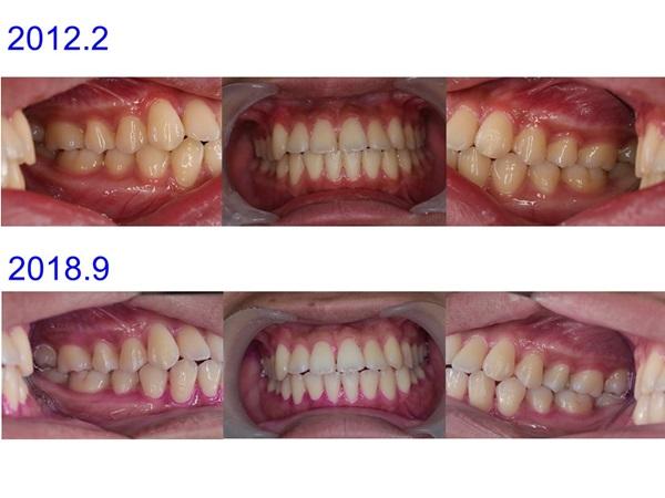 八重歯症例