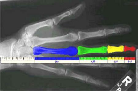 Las falanges de nuestros dedos siguen la sucesión de Fibonacci