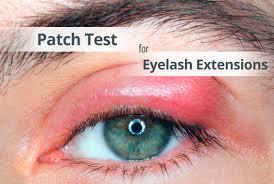 тест за алергия, алергии, предпазване от странични ефекти, реакции,  подуване, болка, хигиена