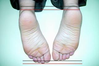 右足が左足に比べて短い状態、骨盤の変位