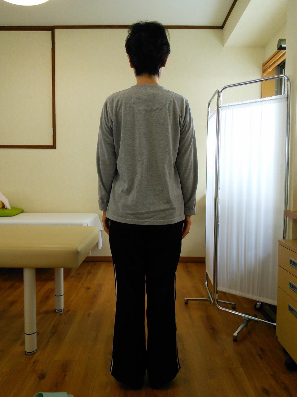 姿勢確認写真 肩こり、姿勢改善