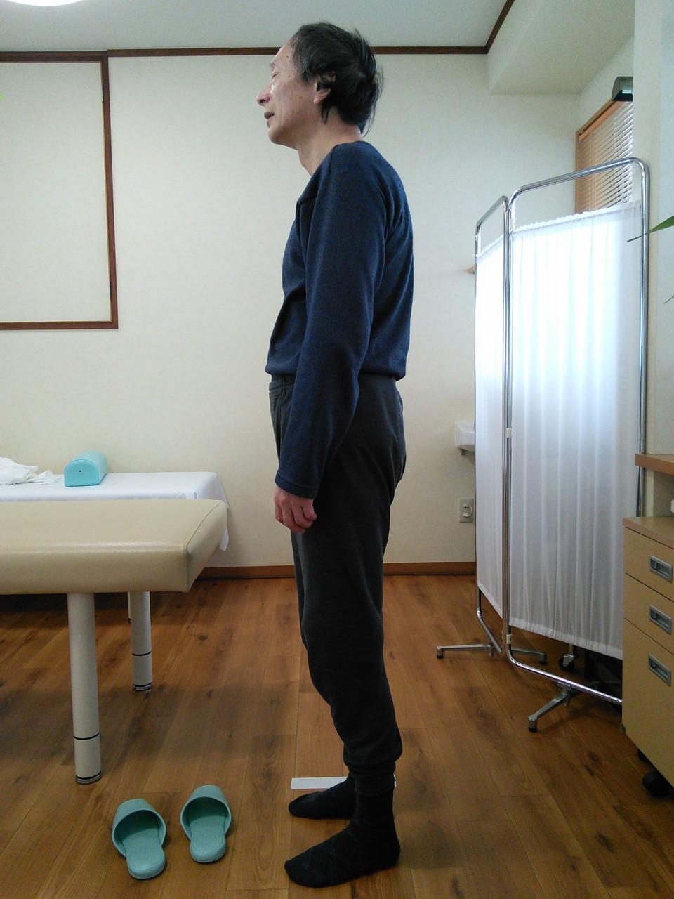 施術後、姿勢確認写真 背中の痛み改善