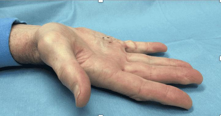 デュピュイトラン拘縮による酵素注射療法・後/ 小指(3週間後)