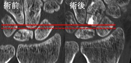 キーンベック病:有頭骨部分短縮骨切術後のCT画像(冠状断)