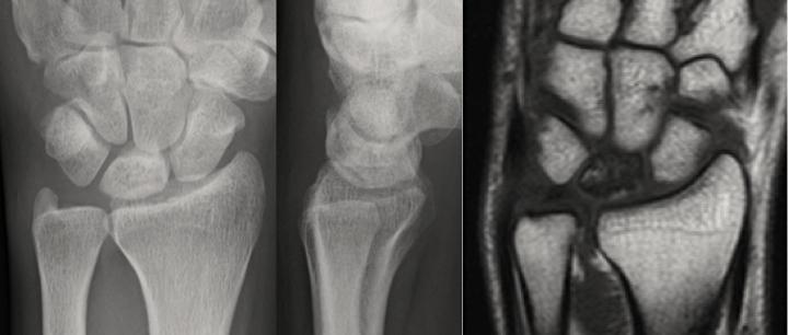 キーンベック病:手術前、単純レントゲンとMRIの対比