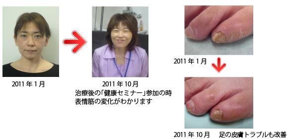 顔のしわやシミは減り、外反母趾や足の爪や皮膚のトラブルも改善された患者様