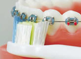 超音波電動歯ブラシ矯正中の方へ