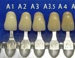 歯の色見本(シェードガイド)