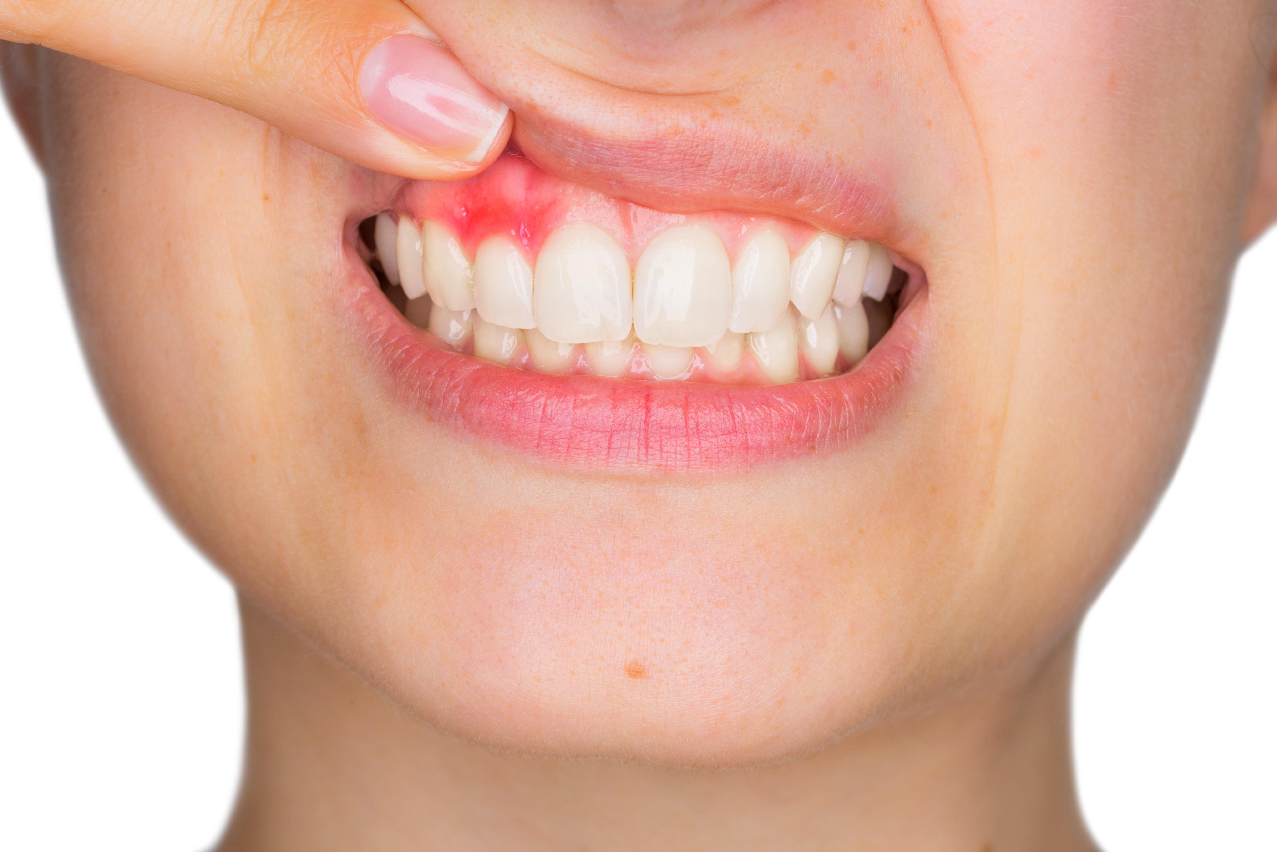 Parodontologie-zahnarztpraxis-carina-sell-gießen